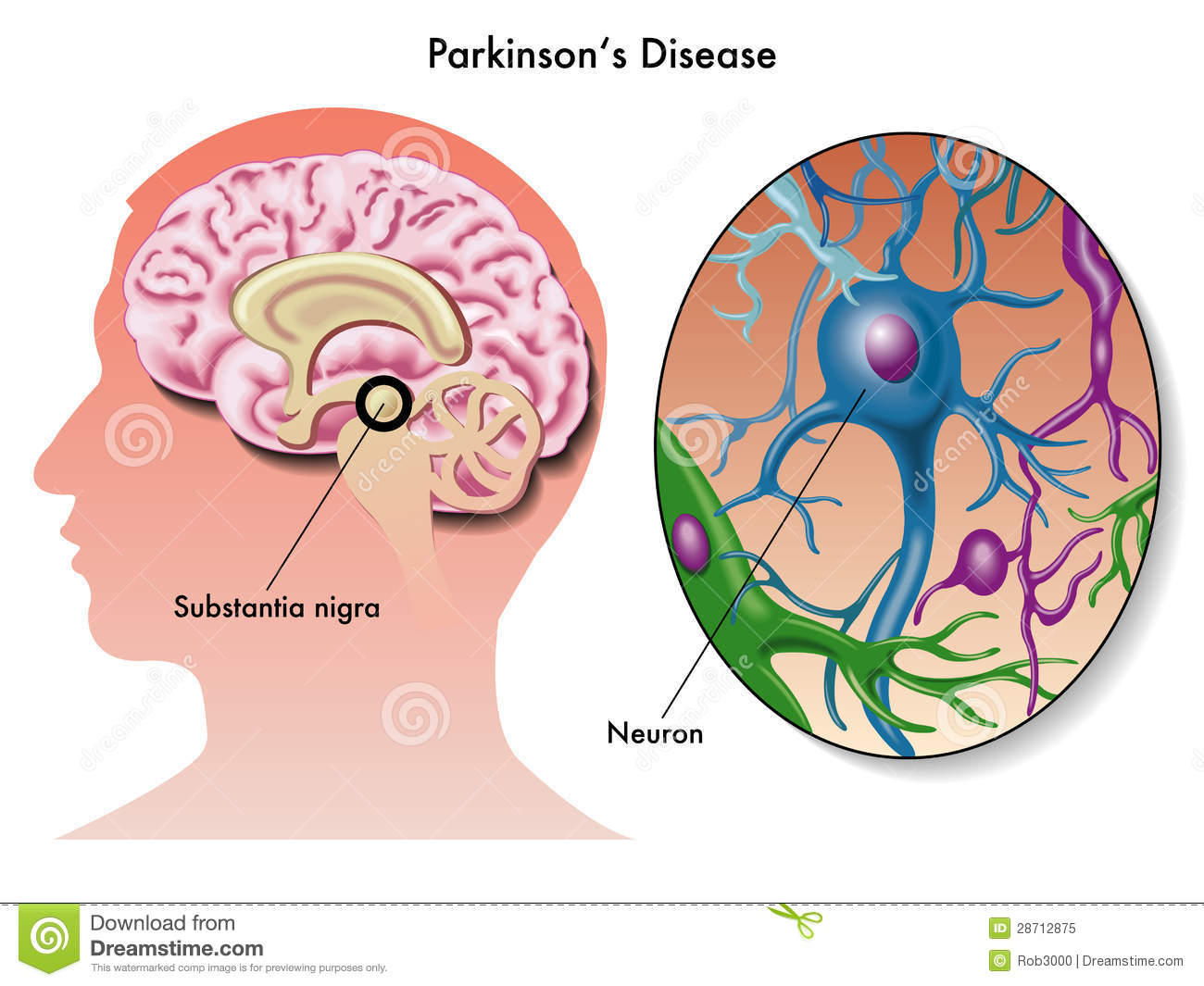 doença-de-parkinson-28712875