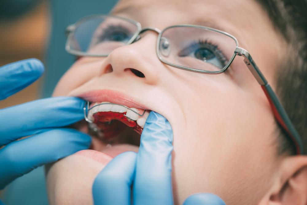 tratamento-ortodontico-em-criancas